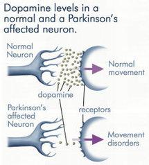 Peut-on guérir de la maladie de Parkinson ?