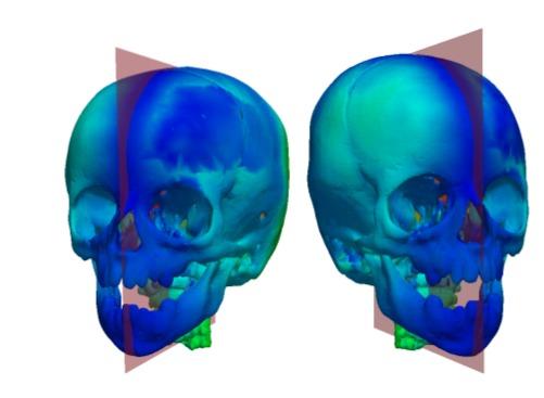 Les progrès récents en imagerie médicale