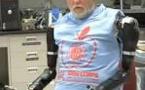 Des prothèses bioniques pour changer la vie des amputés